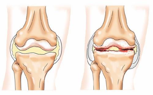 повреждение суставов