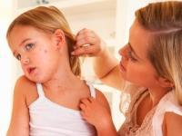 Пиодермия у ребенка: что нужно знать?