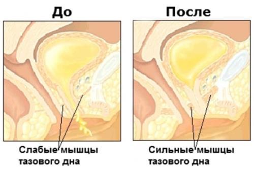 Kompleks-Kegelja-pri-prostatite