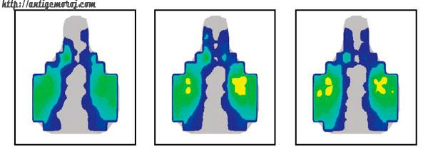 распределение веса на седле