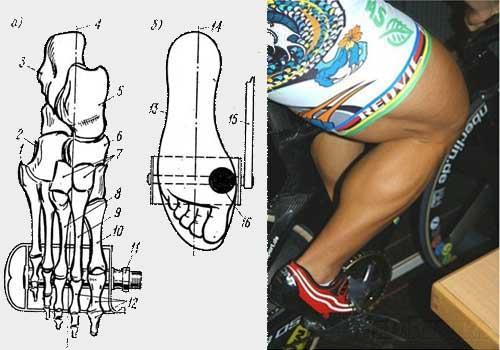 Онемение пальцев ног и боль стопы